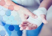 CBD for Wound Healing