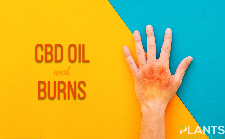 CBD for Burns